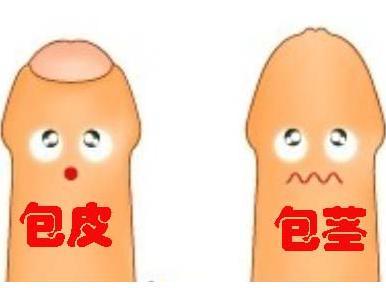 【揭秘】包茎要割吗★细数男性包茎的几种类型