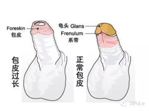 【图解】正常的生殖包皮是什么样的?