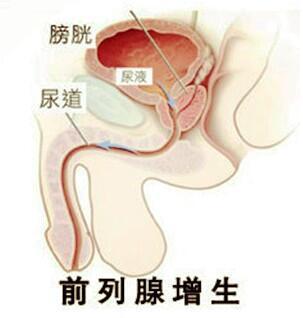 淮安治好前列腺增生要多少钱?淮安治疗前列腺增生的医院?