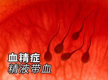 精液带血(2种疾病分析)