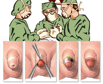 『想割包皮』包皮手术男性需要了解的4项问题!