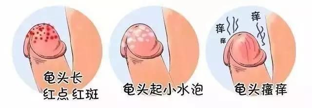 龟头炎症状与治疗方法【看图了解】