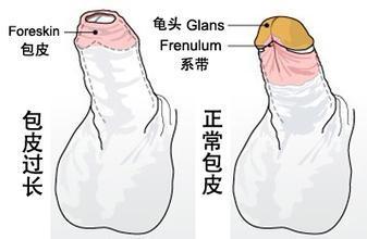 包皮垢怎么去除?包皮经常出现包皮垢是怎么回事?