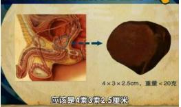 前列腺正常尺寸?前列腺生病,这些症状先出现