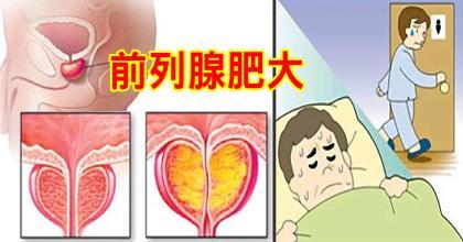 前列腺肥大是什么原因引起?如何保健前列腺?